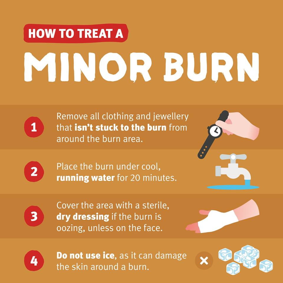How to treat a minor burn